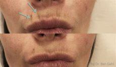 lippen falten barcode technique lippenf 228 ltchen entfernen lippenkorrektur ordination dr benjamin gehl