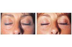 augenlidkorrektur schlupflider wien 1060 dr turkof - Hangende Augenlider Krankenkasse