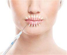 lippenfalten entfernen vorher nachher lippenfalten unterspritzen mit hyaluron in berlin fragen antworten artful aesthetic