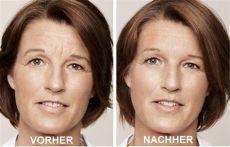 botox lippenfalten vorher nachher faltenunterspritzung in wien mit hyalurons 228 ure juvederm