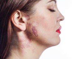 lippenfalten entfernen hausmittel lippenfalten entfernen mit diesen 3 methoden desired de