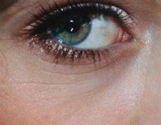 ich habe tiefe augenfalten mit 16 was tun falten - Augenfalten Mit 40