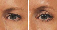 last hangende oogleden geen probleem je kan ze op een natuurlijke wijze een lift geven - Hangende Augenlider Trainieren