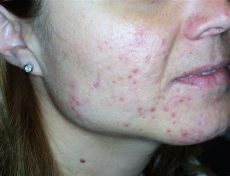 akne tarda homoopathie acne tardiva viene alle giovani donne in seguito a stress