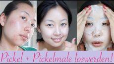 5 tipps gegen pickel pickelmale so wirst du sie schnell los - Pickelmale Entfernen Hautarzt
