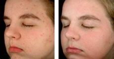 obagi clenziderm before and after obagi clenziderm before after the skin