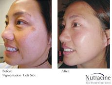 before and after nutracine skin - Tretinoin 1 Cream Before And After
