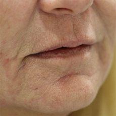 lippen falten plasmalifting lippenfalten entfernen fakten und m 246 glichkeiten