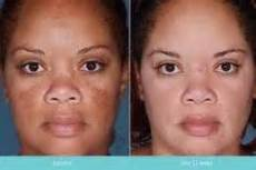 tretinoin 1 cream before and after tretinoin 0 025 before and after photos images meditacion espiritualidad salud y