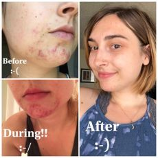 tretinoin 1 cream before and after before and after using retin a tretinoin 0 025 never ending journey the course of a year