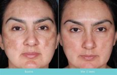 tretinoin 1 cream before and after exle 2