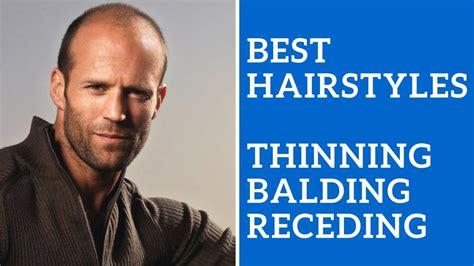 men hairstyles thinning hair balding hair receding hair