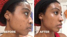 pfb vanish chromabright before and after my care routine using pfb vanish aishabeau