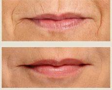 lippenfalten und mundf 228 ltchen unterspritzen mit hyalurons 228 ure - Falten Um Die Lippen