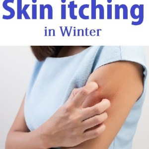 Exact solutions of Skin itching in Winter