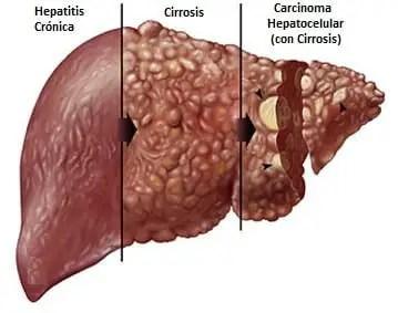 sintomas-de-transaminasas-altas