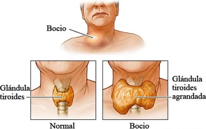 Inflamacion de la tiroides sintomas
