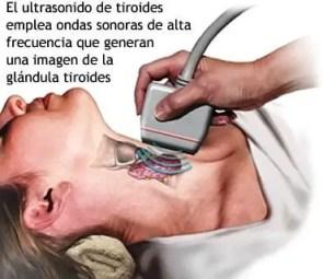 Nodulos en la tiroides consecuencias