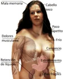 Sintomas de hipotiroidismo en mujeres