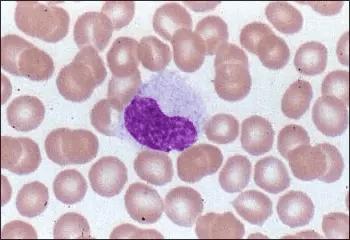 Monocitos Valores Normales