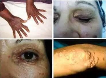Síntomas de triglicéridos