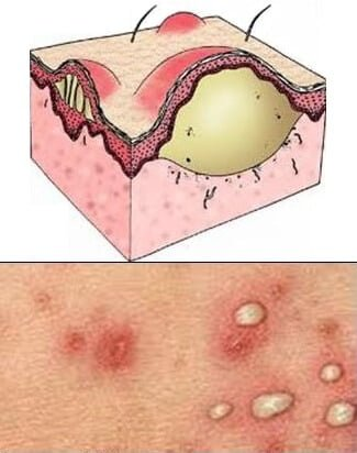 Neutrofilia Causas