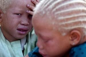 albino-africa