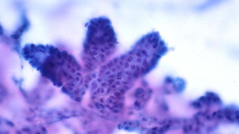 Cytopathology