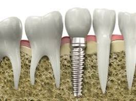 Implante dental 2|www.tuimplantedental.es