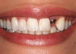 Implante dental 3|www.tuimplantedental.es