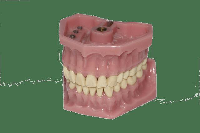 5 consejos útiles para comer con prótesis dentales