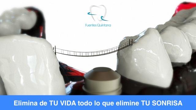 Qué es el implante dental