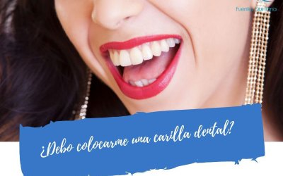 ¿Debo colocarme una carilla dental?