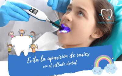 Evita la aparición de caries con el sellado dental
