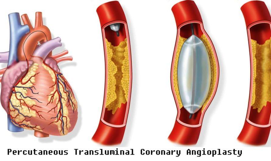 PTCA (Percutaneous Transluminal Coronary Angioplasty)