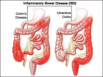 Mengenal Istilah Penyakit Inflamasi Usus (IBD)
