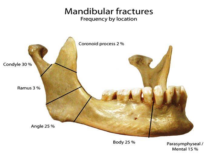 Tanda dan gejala patah tulang rahang yang harus diketahui ...