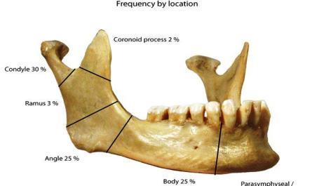 tanda dan gejala patah tulang rahang
