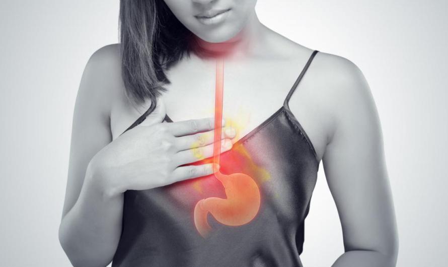 Is Acid Reflux also called Gastroesophageal Reflux Disease (GERD)