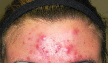 A few facts about Acne and Pregnant Women