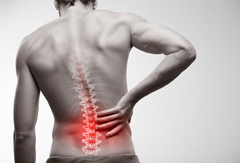 How Back Pain Can Happen