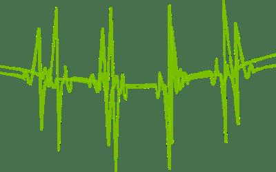 EKG – Visa att du lever med den här EKG-kurvan!