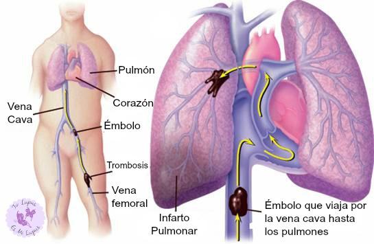 Trombos, émbolo, trombosis