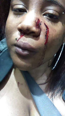 He Beat Me Like A Dog – Pregnant Woman battered by her baby daddy