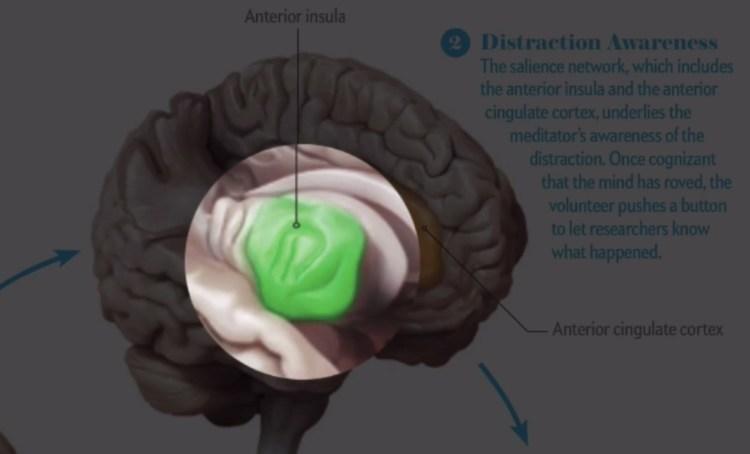 cerebro5