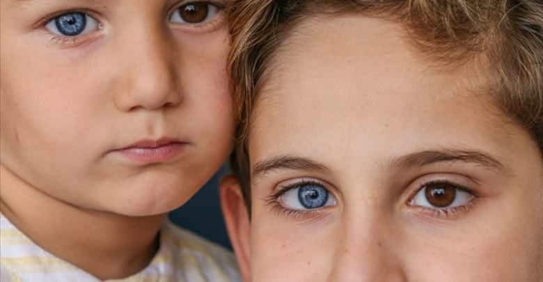 Photo of شقيقان لكل منهما عين زرقاء وأخرى بنية