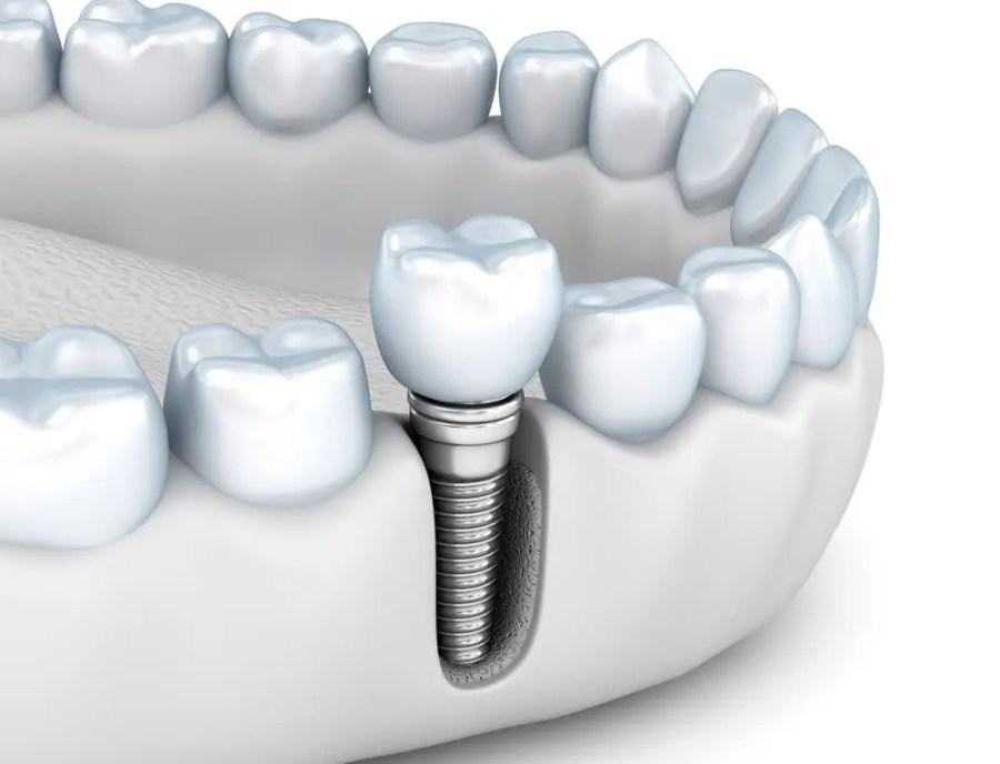 زراعة الاسنان كيف تتم العملية وما هي الخطوات والأنواع