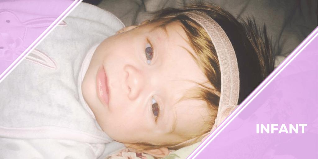 Turner syndrome infant