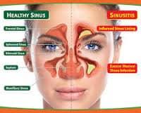 sinusitis-2