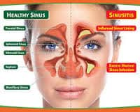sinusitis-2